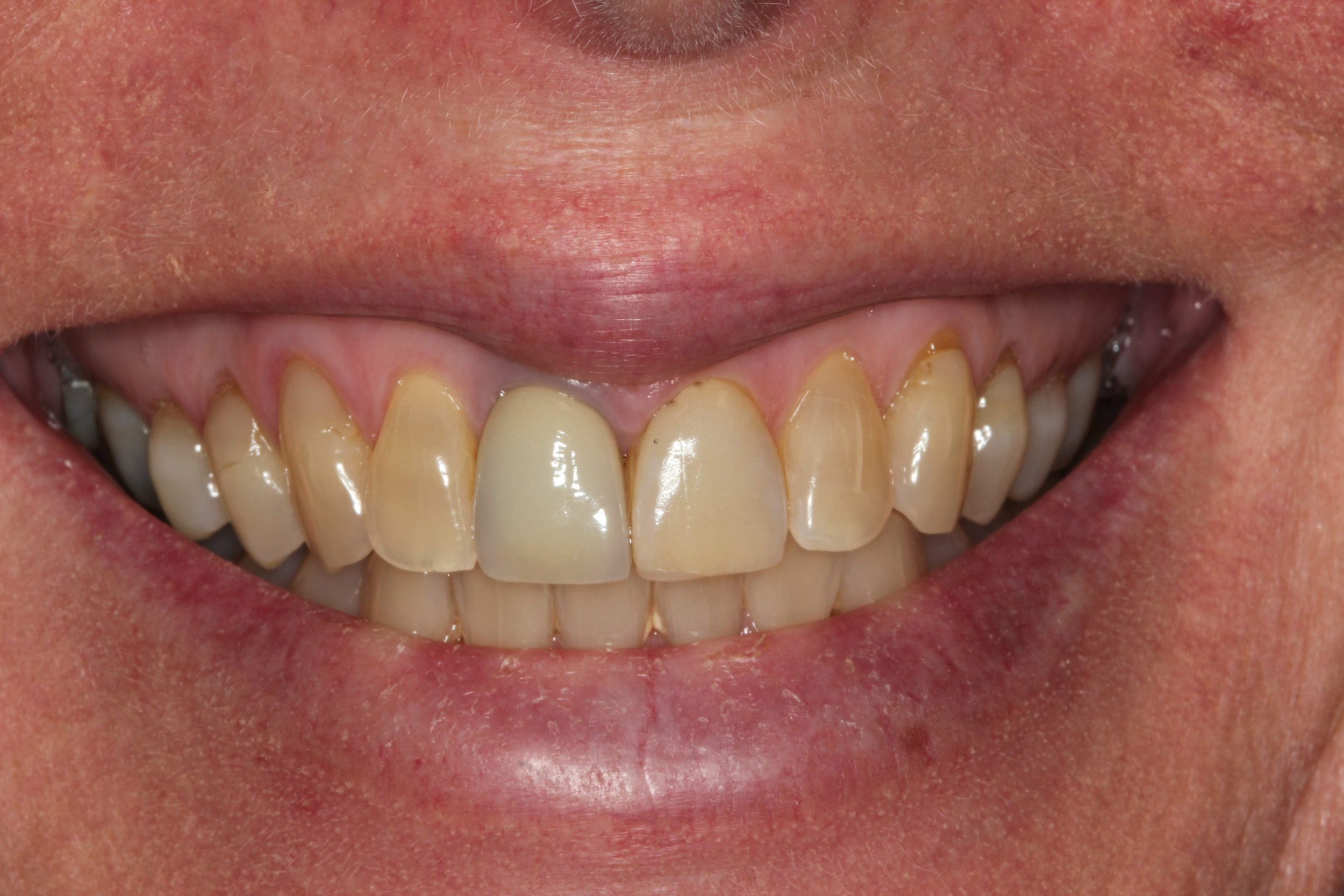 veneer change teeth whitening