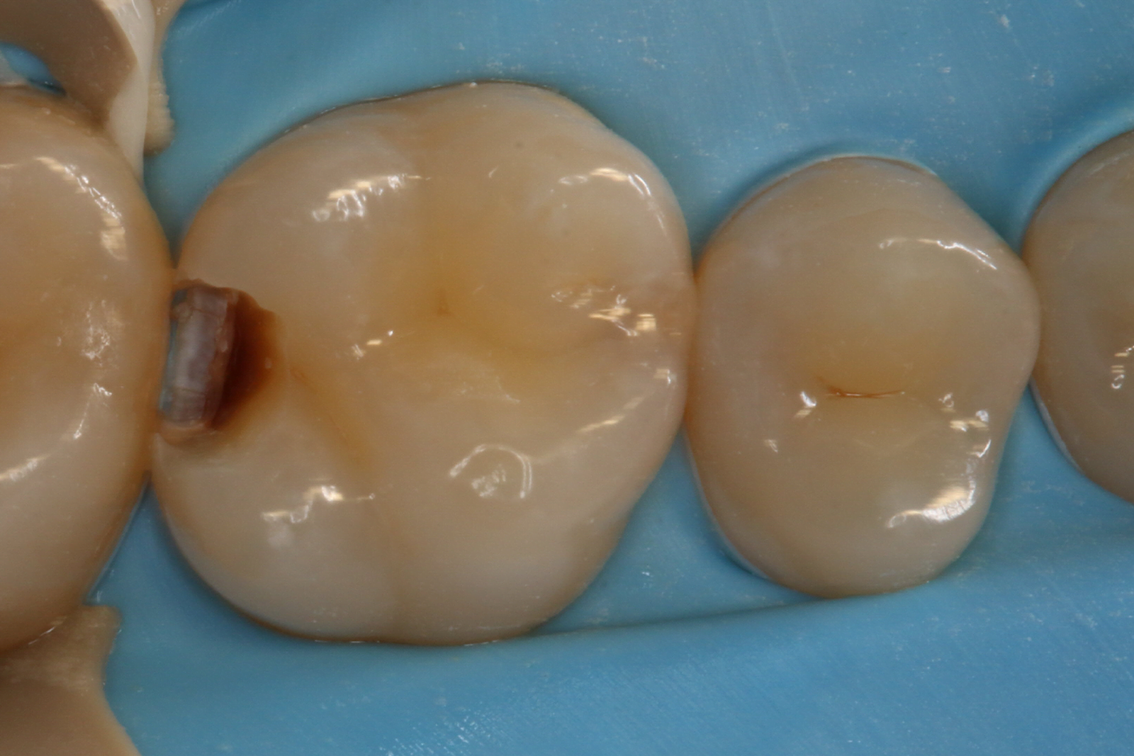 molar composite filling