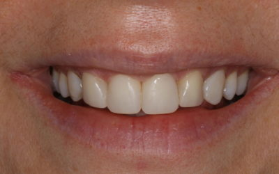 orthodontics or cosmetic dentistry
