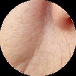 Facial Aesthetics Nasolabial Folds