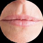 Facial Aesthetics Lip Fullness